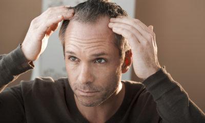 homem-com-entradas-no-cabelo